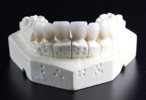 DD_dal dentista_odontoiatra o odontotecnico 1