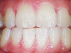 DD_dal dentista_reflusso gastroesofageo_ erosioni dentali salute orale 1