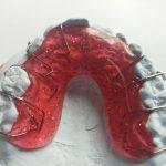 DD_dal dentista_ apparecchio_ortodontista