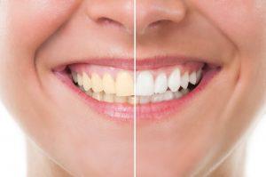 DD_daldentista_denti bianchi sorriso smagliante denti gialli