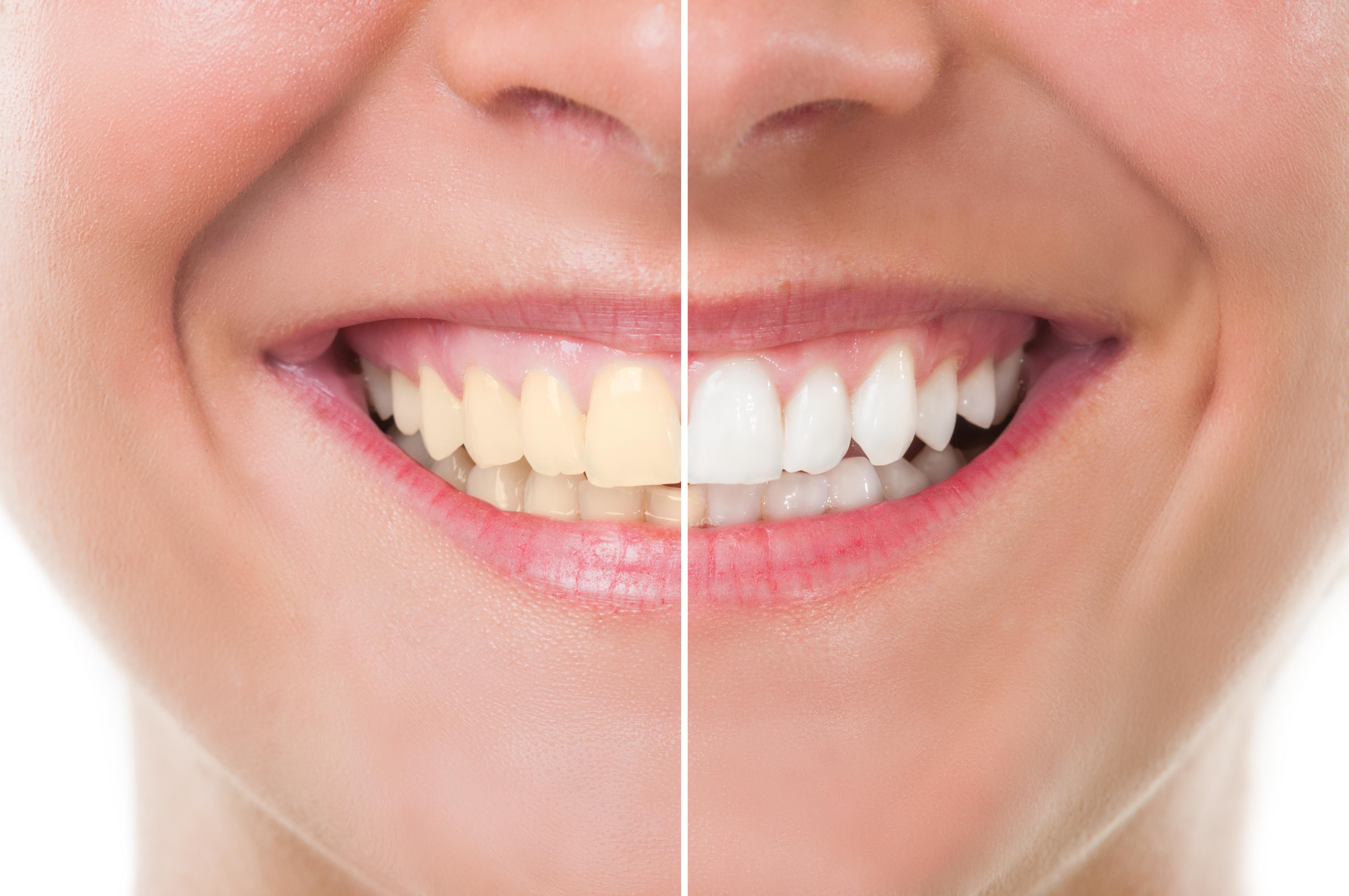 Denti bianchi cosa fare e non fare per avere un sorriso